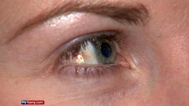 heart-eye-implant