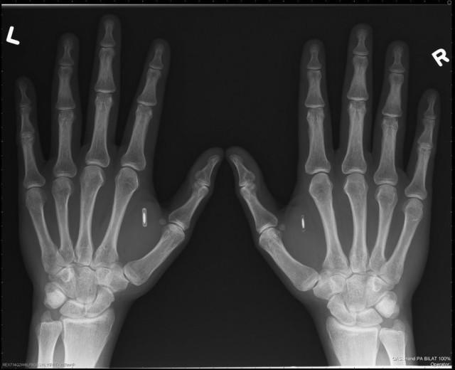 nfc hand