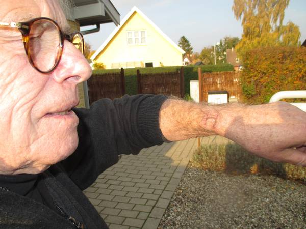 Apple Watch brændte min arm