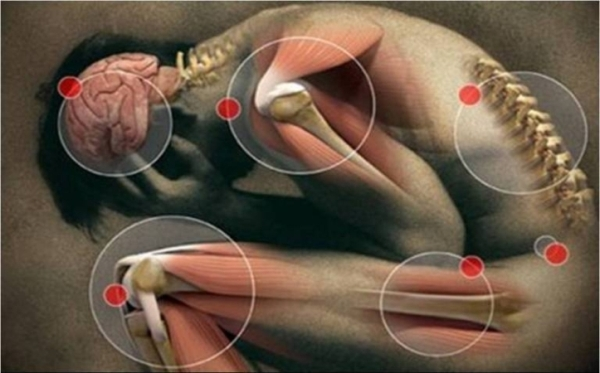 Fibromialgia1-edit