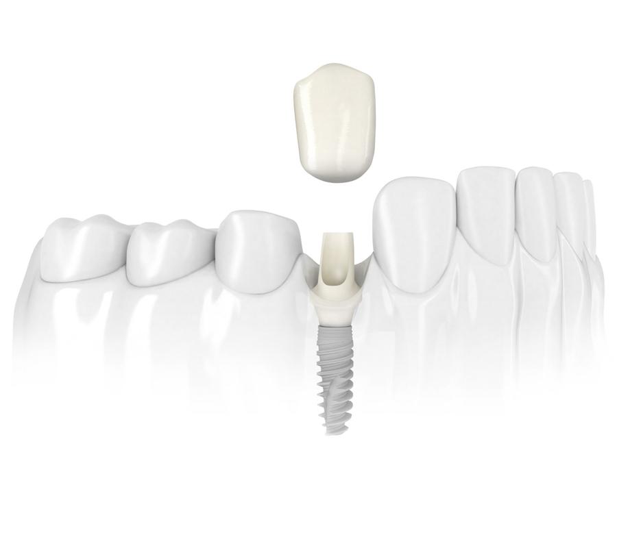 odontologia-villa-madero-la-matanza-implante-dental-000
