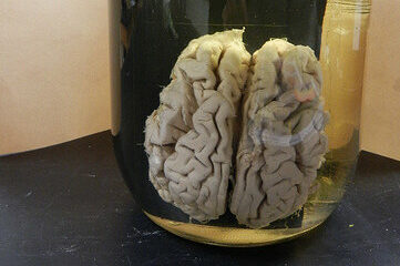 photo of a human brain in a jar