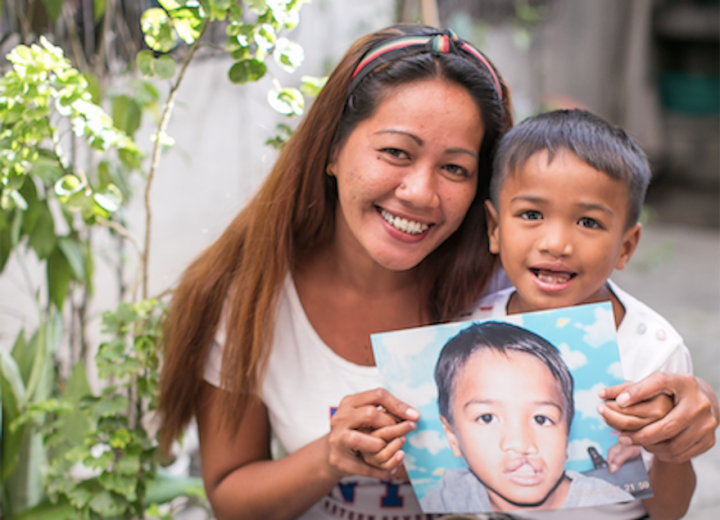 Globe teams up with Smile Train to give children with cleft lips and palates a reason to smile   Cebu Finest