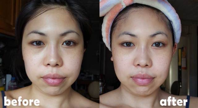 Serendibeauty O2 Bubble Mask BEFORE and AFTER