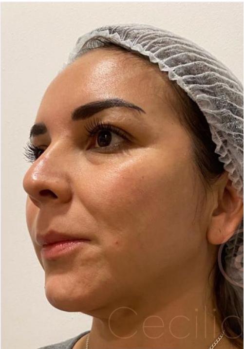 marcación-del-arco-mandibular-antes