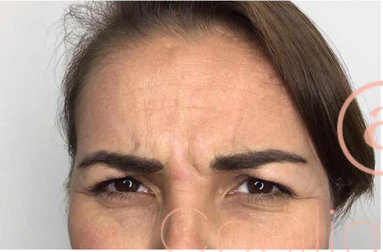 arrugas-del-tercio-superior-antes-2