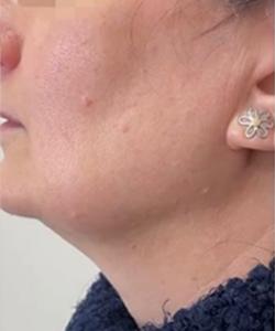 hilos-tensores-antes-del-tratamiento