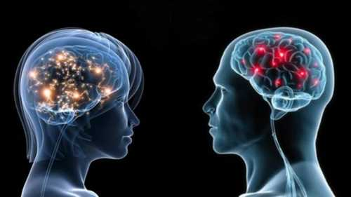 cerebro-hombres