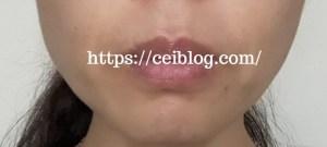 ラ・リフティーノヒト幹細胞美容液口コミレビュー