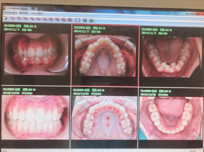 tokyo-jingumae-orthodontics-omotesando