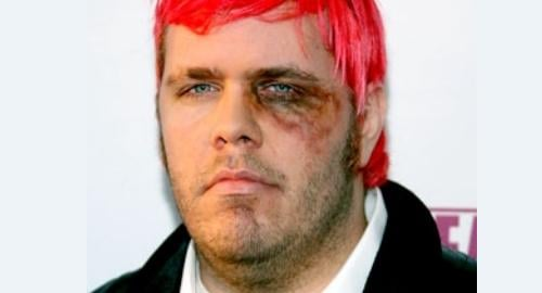Perez Hilton's Black Eye