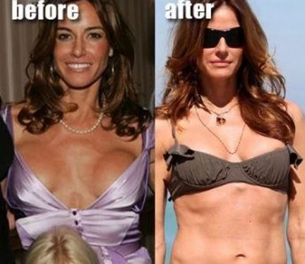 Kelly Bensimon Plastic Surgery Before And After Photos