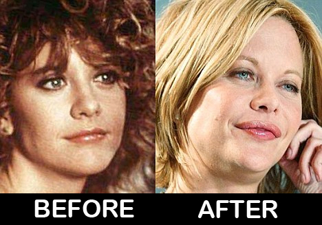 Meg Ryan Before And After Plastic Surgery Photos Celebrity Surgery
