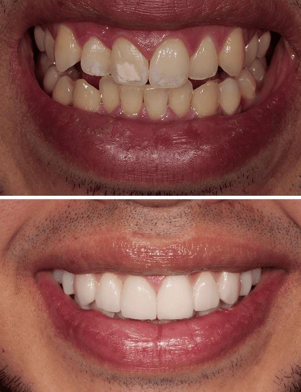 Veneers vs Lumineers   Best Dentists in Los Angeles for ...