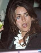 Penelope Cruz Facial Naked 001
