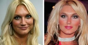 Brooke Hogan plastic surgery before and after