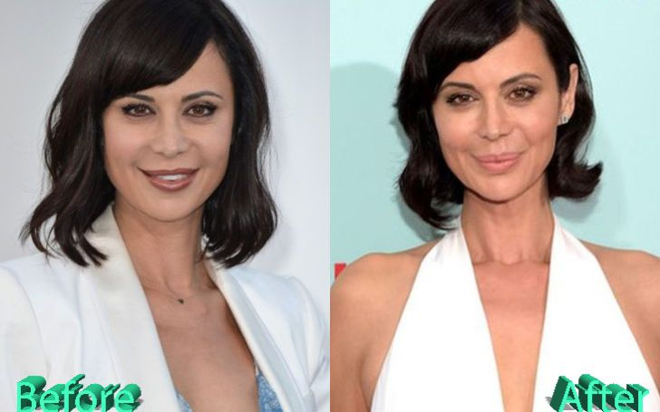 Every Surgery Details of Actress Catherine Lisa Bell!!!