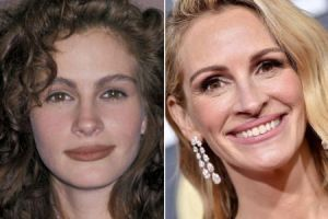 Julia Roberts before and after Lip Augmentation