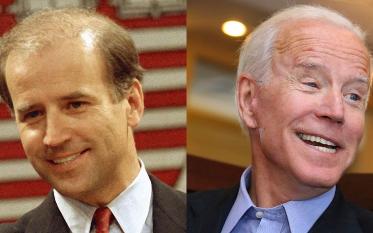 Joe Biden Teeth and Alleged Plastic Surgery