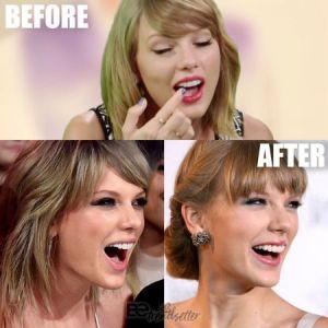 Taylor Swift Teeth Fix, whitening details