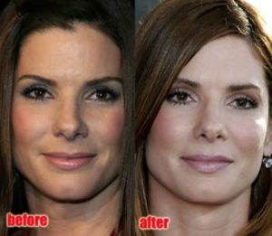Sandra Bullock before and after Botox & Facelift
