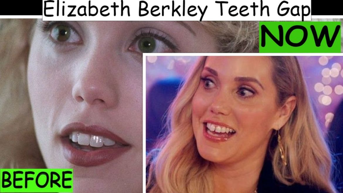 Elizabeth Berkley Teeth Gap – Before & After Comparison