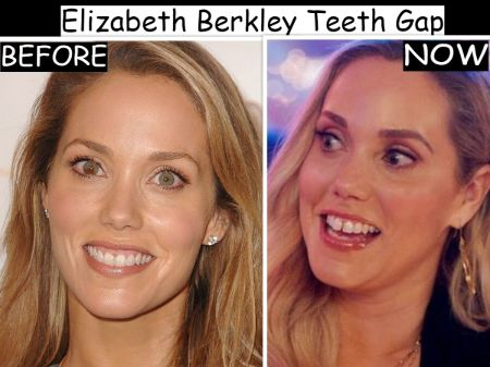 Eliza-berkley-teeth-gap-before-after