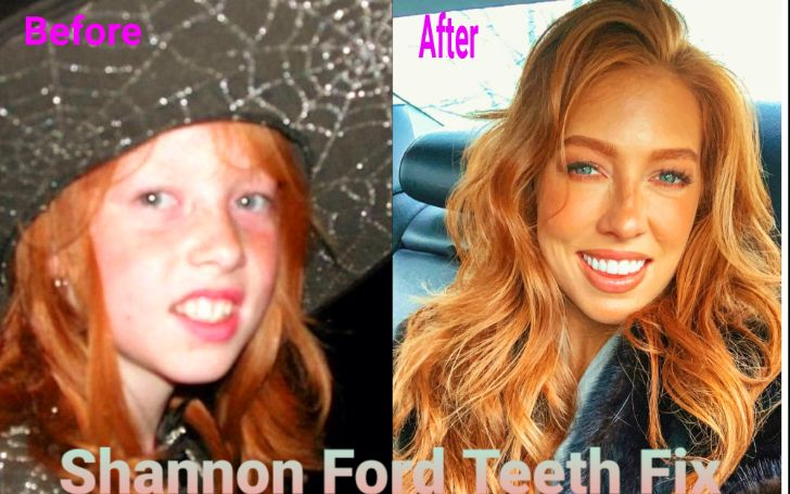 Is Model/Actress Shannon Ford Teeth Real or Fix – Before & After