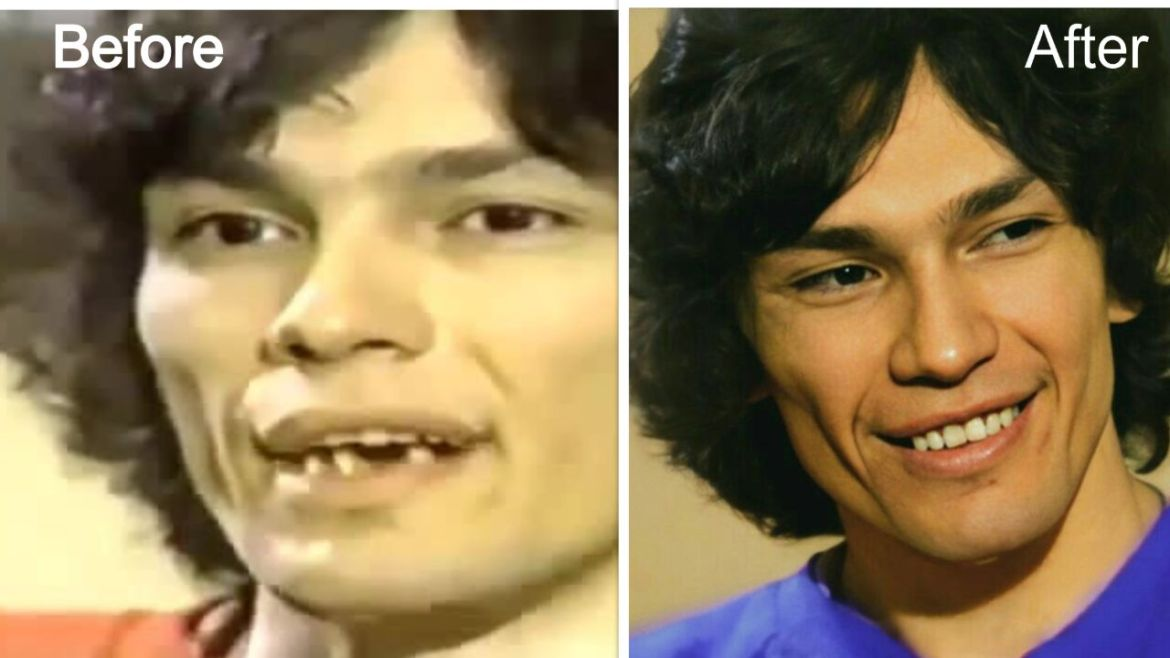 The Night Stalker aka Richard Ramirez Teeth Fix- Before and After Comparison