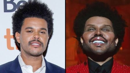 The Weeknd Veneers before and after