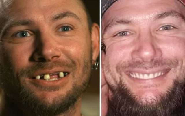 John Finlay teeth fixed before Tiger King and was not because of drugs.