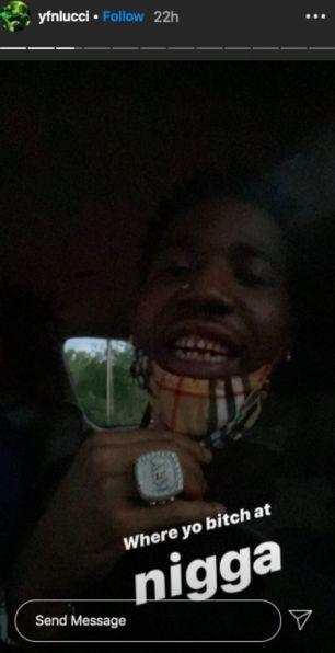 YFN Lucci bad teeth