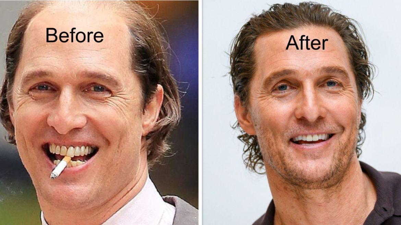 Matthew McConaughey Hair Transplant, Teeth Fix, and Whitening