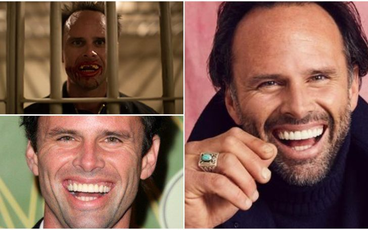 Walton Goggins' Teeth
