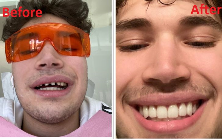 Adin Ross Teeth Fix -Before & After Veneers