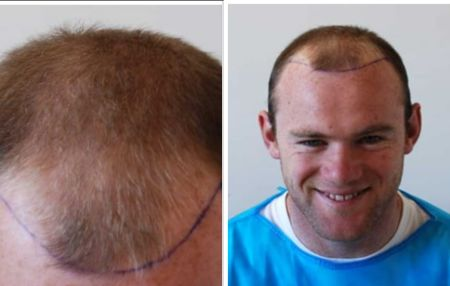 Wayne Rooney Hair Transplant Before and After