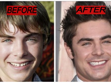 Does Zac Efron Have Fake Teeth?
