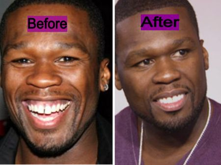 50 Cent Teeth Gap - Before & After