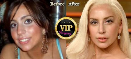 Lady Gaga's plastic surgery Before and After pictures
