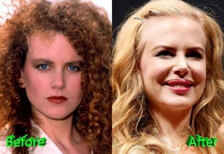 What do you think about Nicole Kidman's Plastic Surgery?