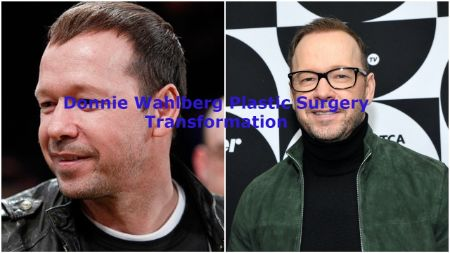 Donnie Wahlberg Plastic Surgery Transformation