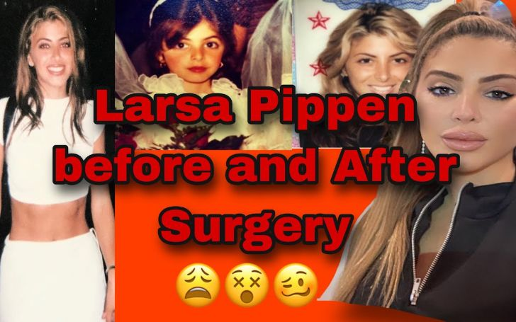 'The Real Housewives of Miami' star Larsa Pippen Plastic Surgery