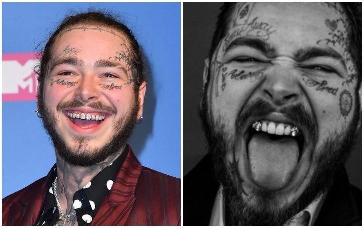 Post Malone $1.6 Million Diamond Teeth !!!