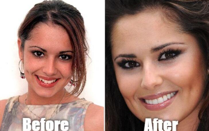 Facts You Didn't Know About Cheryl Cole Teeth!!!
