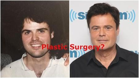 Donny Osmond Plastic Surgery