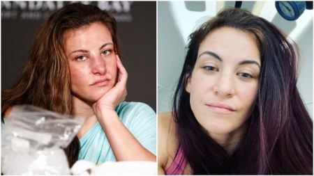 Miesha Tate Before and After nose Surgery