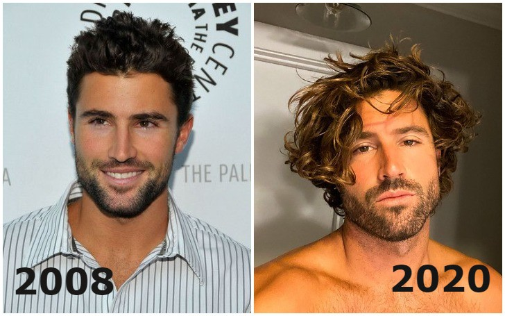'The Hills' Star Brody Jenner Plastic Surgery Truth!!!