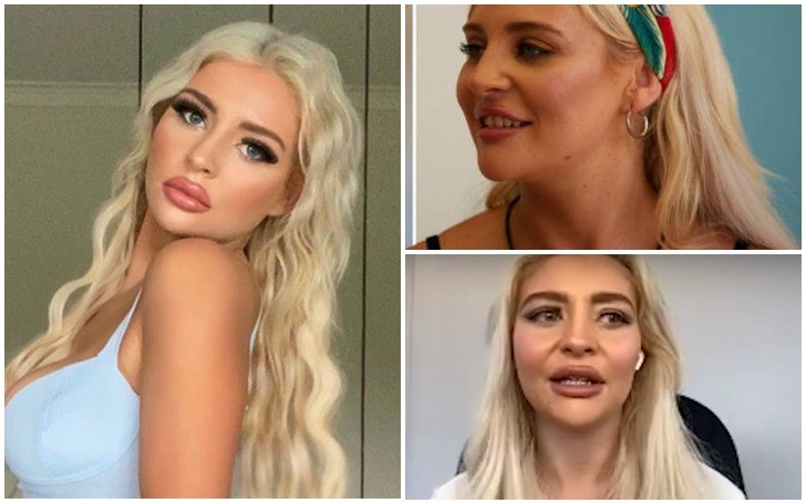 What Happened to 'Too Hot to Handle' Larissa Trownson Teeth???