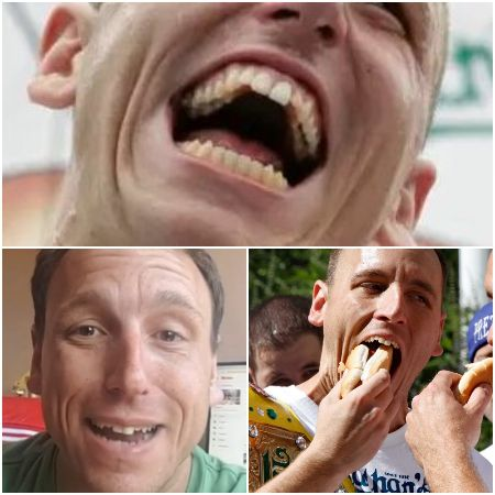 Have a look at Joey Chestnut teeth