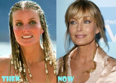 Compare and share your opinion on Bo Derek Plastic Surgery rumors